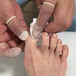 滋賀の巻き爪治療院