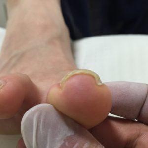奈良巻き爪