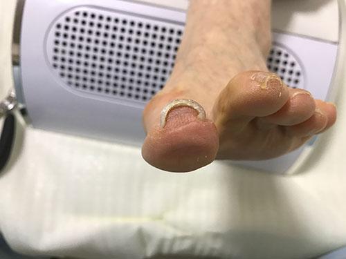枚方の巻き爪症状事例