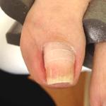 枚方の巻き爪治療