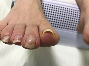 大津巻き爪事例の右足
