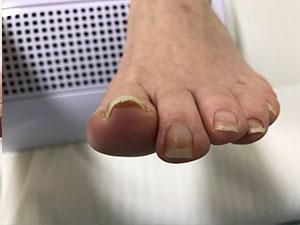 大津巻き爪の左足前