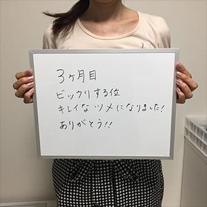 大阪府高槻市からの巻き爪のお客様