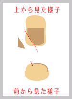 京都の巻き爪治療法