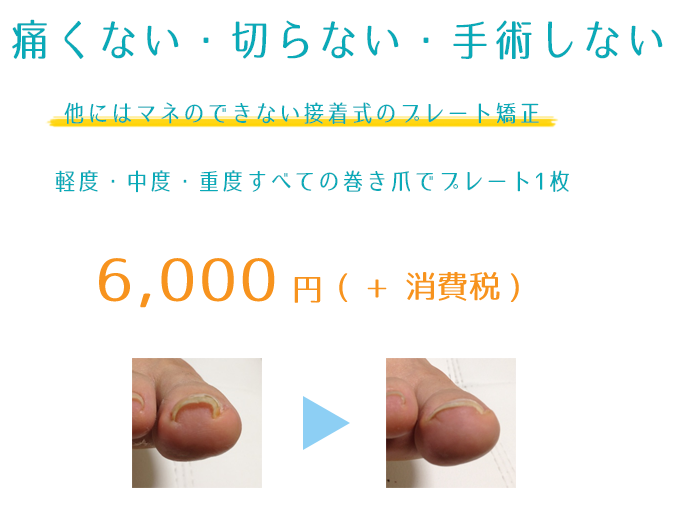 京都大阪の巻き爪治療の価格