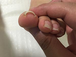 初来院時左巻き爪症状