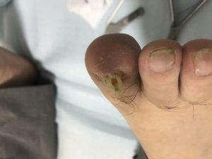 巻き爪症状事例