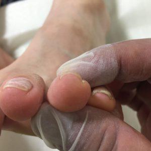 奈良巻き爪の症状