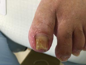 爪白癬の症状