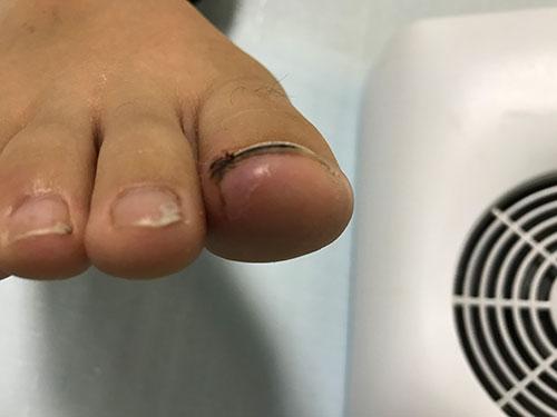 大阪府交野市の巻き爪で、膿炎症を伴ったケース1