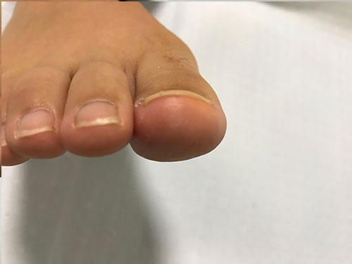 大阪府交野市の巻き爪で、膿炎症を伴ったケース3
