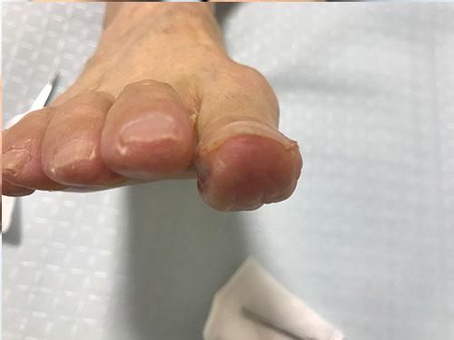 香里園の巻き爪矯正事例4