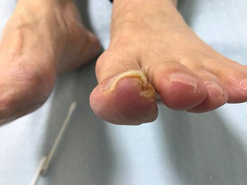 香里園の巻き爪矯正事例1