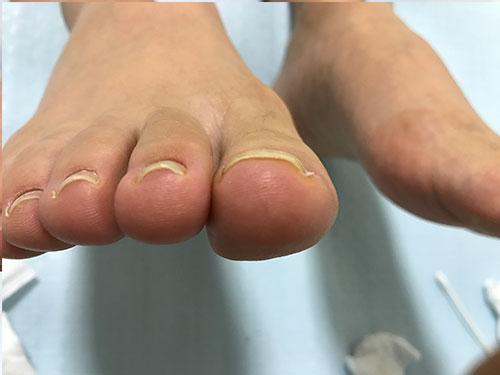 枚方市南樟葉の巻き爪矯正事例1
