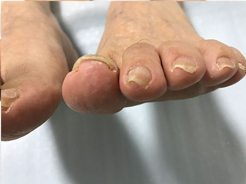 守口市からお越しの巻き爪矯正事例。左足親指