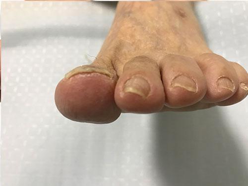 守口市の巻き爪矯正。3回目左親指