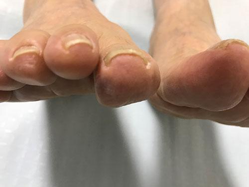 大阪府守口市の巻き爪矯正。右足