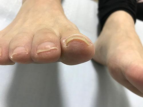 爪の先端が突き刺さった巻き爪の症状1