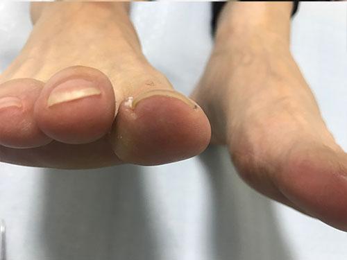 爪の先端が突き刺さった巻き爪の症状2