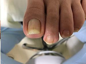 大津巻き爪の左足上から