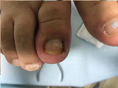 巻き爪矯正前の爪正面写真2