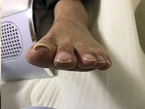 枚方市招提の巻き爪症状左