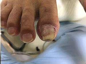 枚方市招提の巻き爪症状右施術後