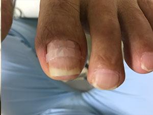 枚方市招提の巻き爪症状左施術
