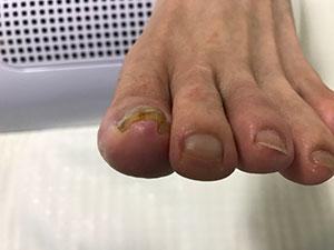 巻き爪症状3