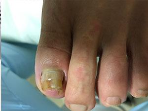 巻き爪症状3施術後