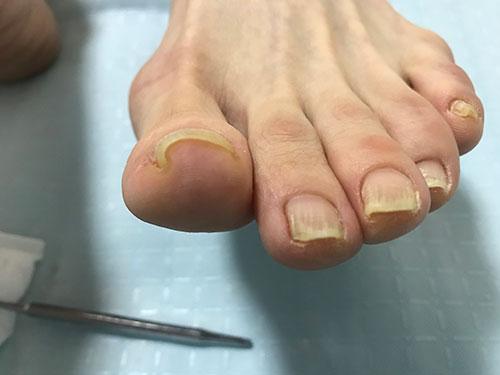 高槻のネイルサロンの巻き爪矯正