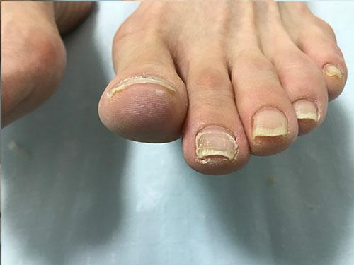 高槻のネイルサロンの巻き爪矯正2