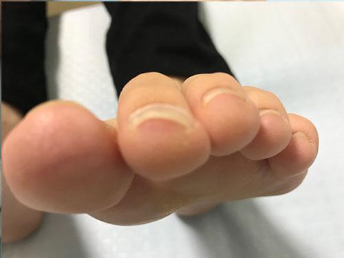高槻のネイルサロンの巻き爪矯正4