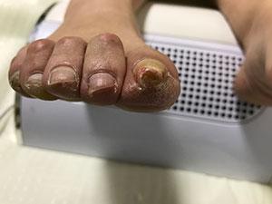 宇治巻き爪症状事例(正面)
