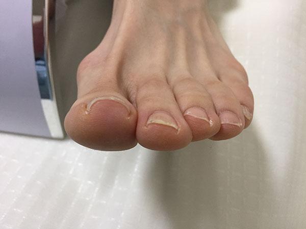 京都府八幡市巻き爪症状